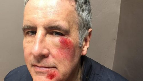Sky News presenter Dermot Murnaghan reveals hit-and-run injuries